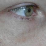 Лечение тёмных кругов под глазами.