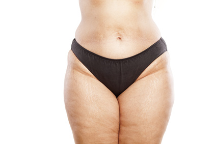 Гиноидное и андроидное ожирение.