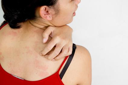 Аллергия на солнце, или фотодерматоз