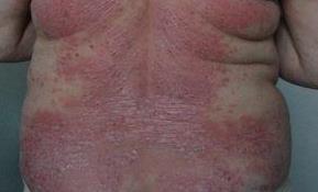 Можно ли вылечить псориаз гомеопатией?