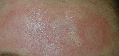 Для улучшения кожи - пилинг.